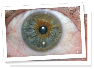 iridology cameras australia wide