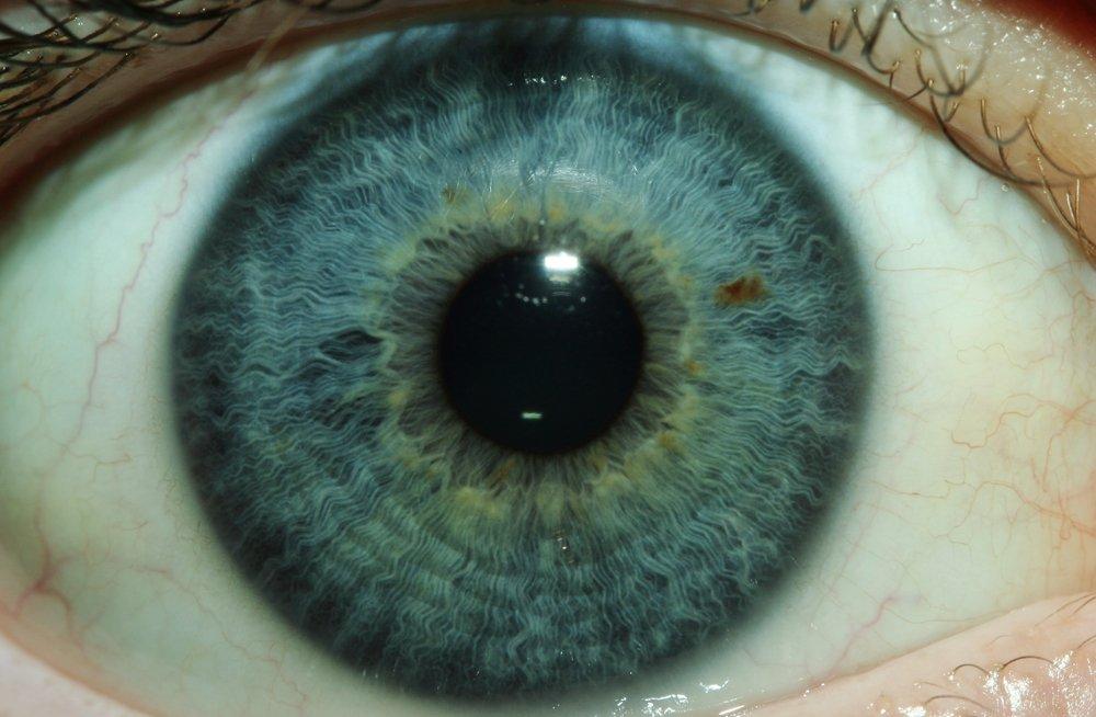 IrisCam Iridology Cameras